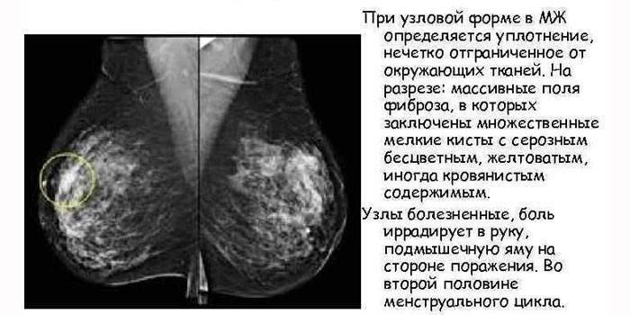 кистозно фиброзная мастопатия признаки