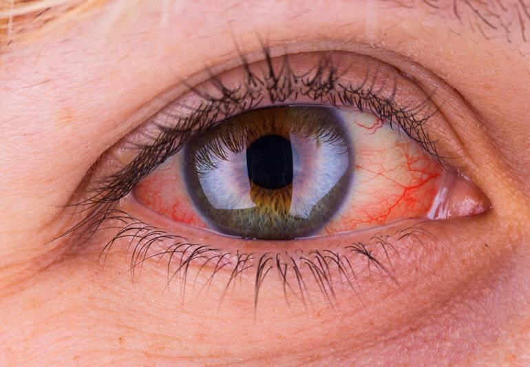 Герпетический конъюнктивит причины симптомы лечение прогноз
