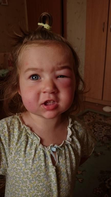 распух глаз от укуса комара у ребенка