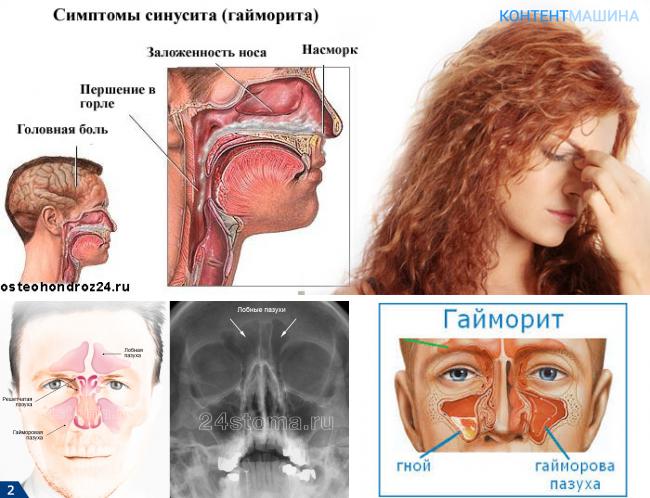 двусторонний гайморит лечение