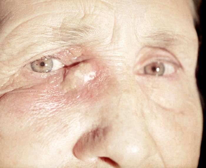 Опухоль на веке глаза: доброкачественные и злокачественные новообразования