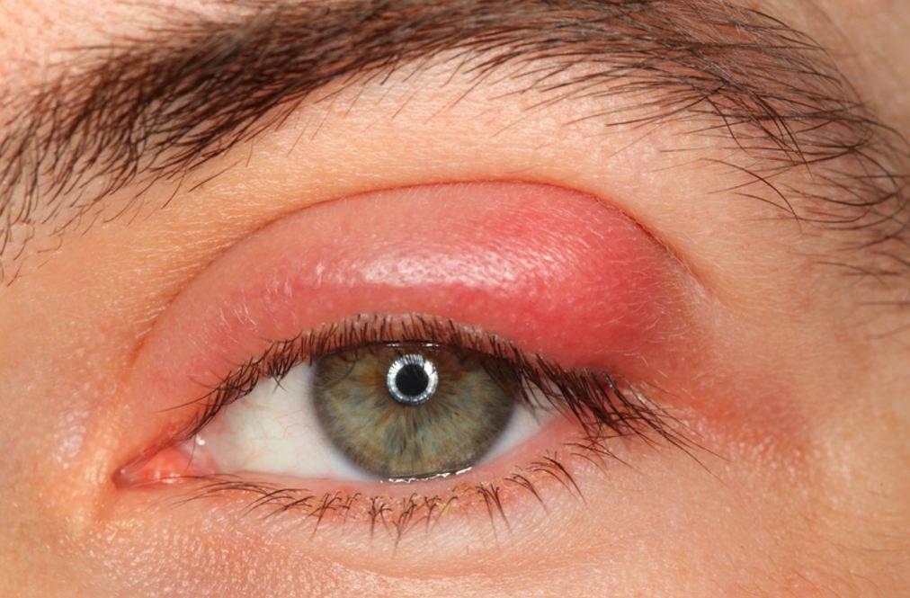 Фурункул на глазу как лечить