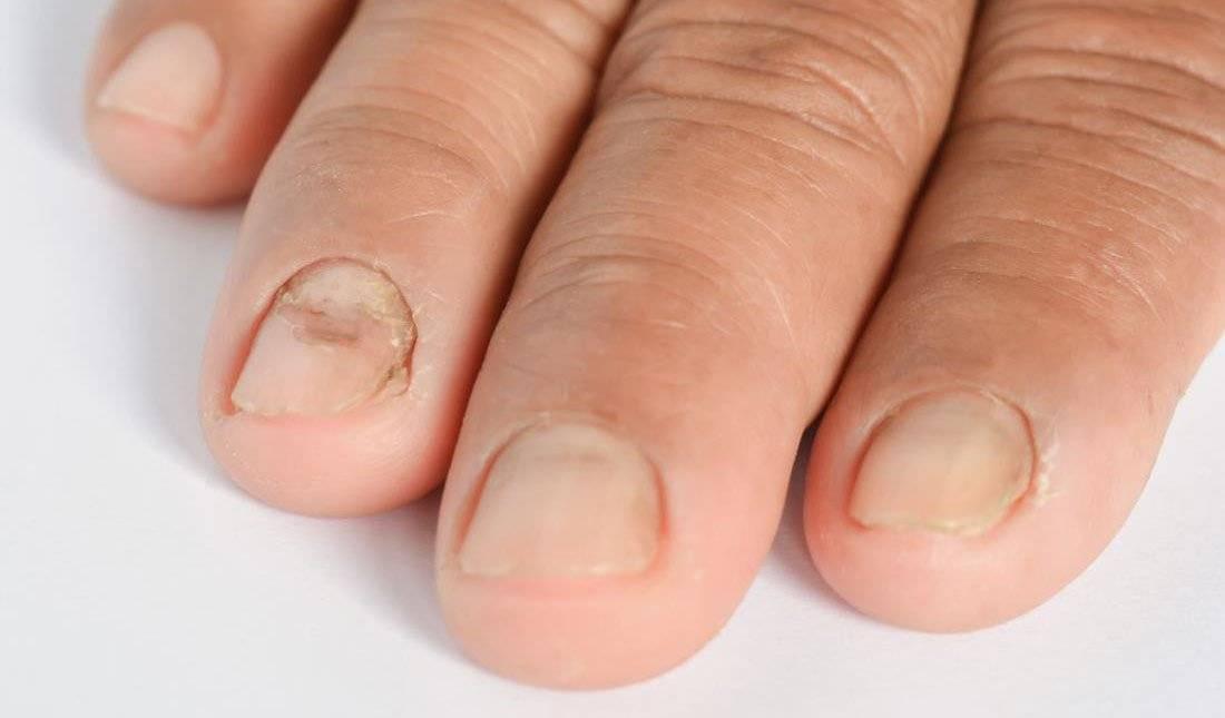 Псориаз ногтей: причины и лечение. псориаз на ногтях: лечение народными средствами