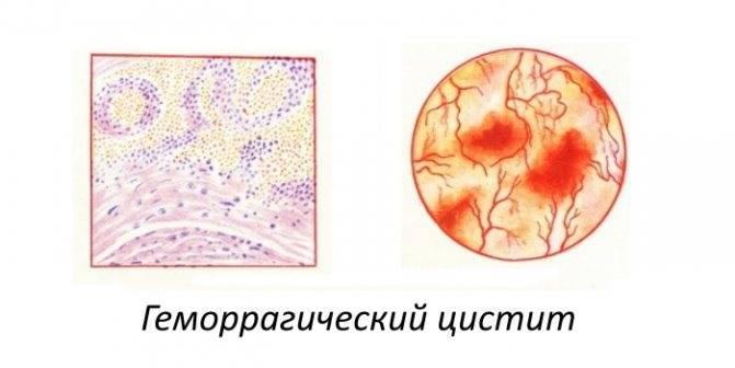 Причины появления цистита с кровью