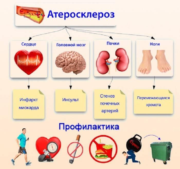 первичная и вторичная профилактика атеросклероза
