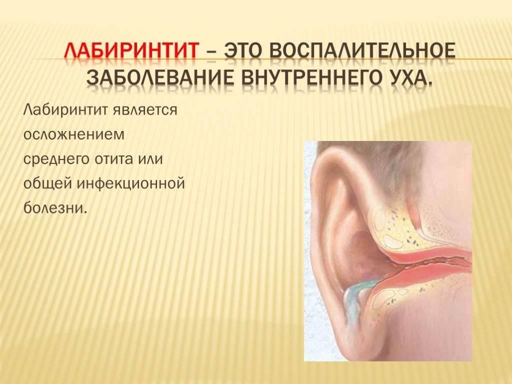 воспаление внутреннего уха симптомы