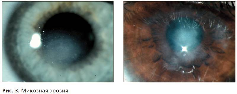 Симптомы и лечение эрозии роговицы глаза