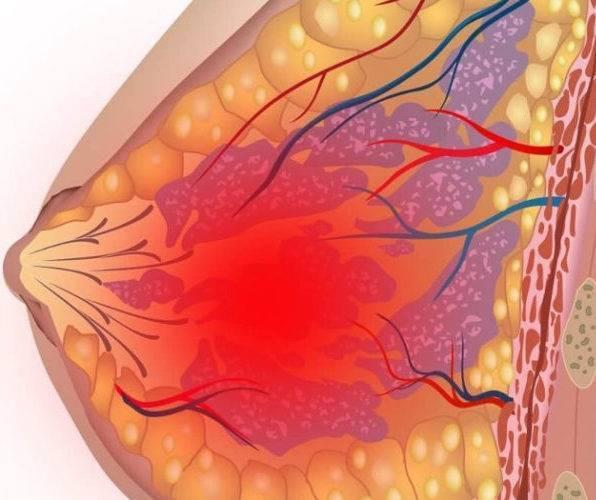Может ли повышаться температура при мастопатии