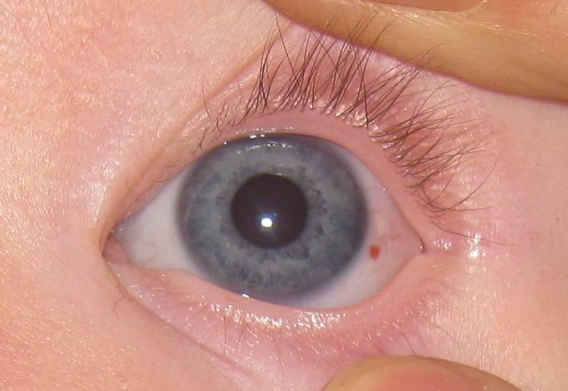 точки на глазах