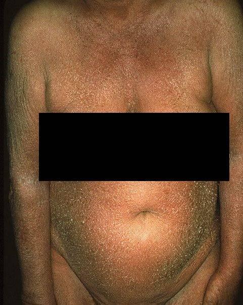 Герпес на теле – причины появления на животе, на груди, на спине. заразен ли герпес?