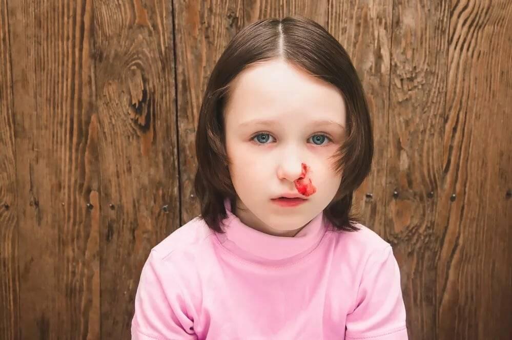 с носа идет кровь