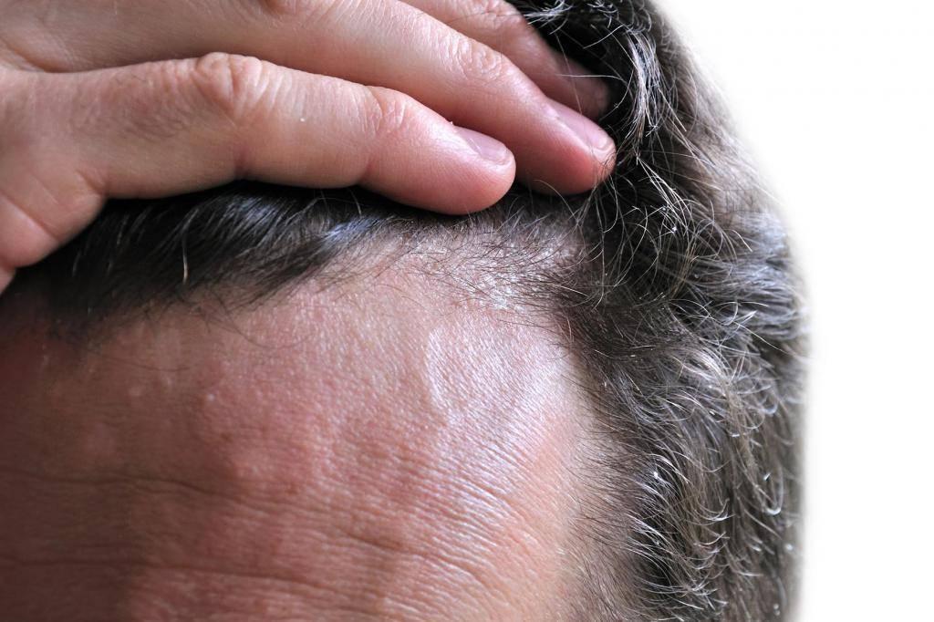 себорейный дерматит волос