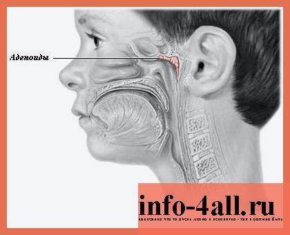 Воспаление аденоидов у детей: причины, симптомы, лечение