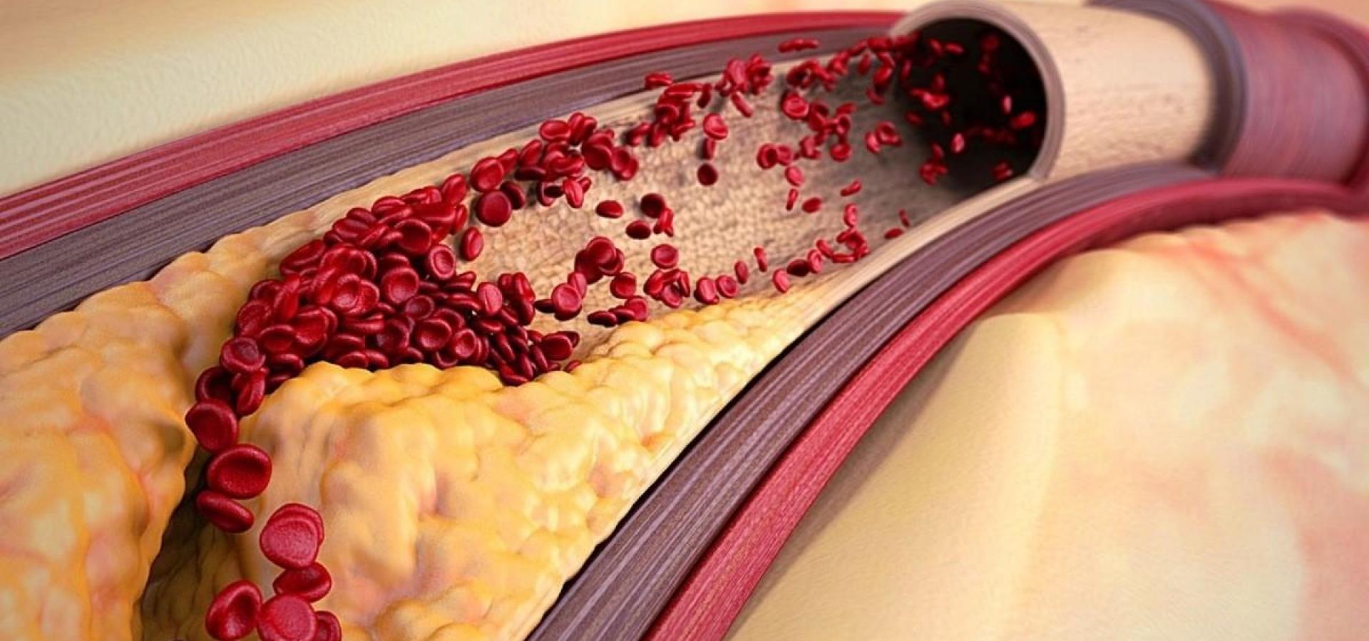 Опасный холестерин — миф?