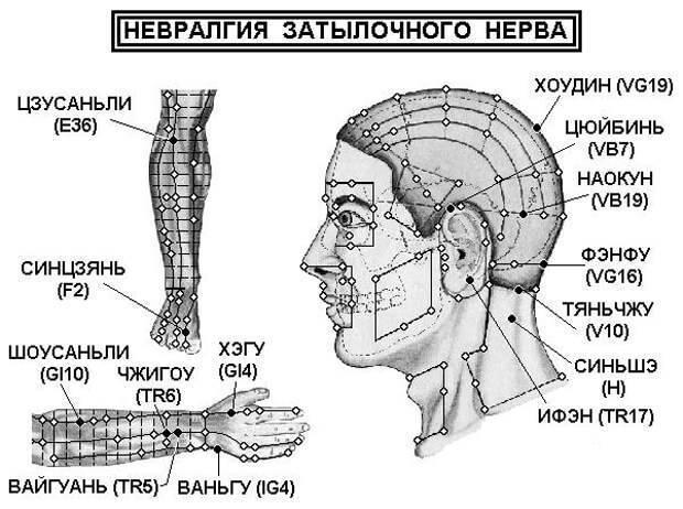 Симптомы, диагностика и лечение невралгии затылочного нерва