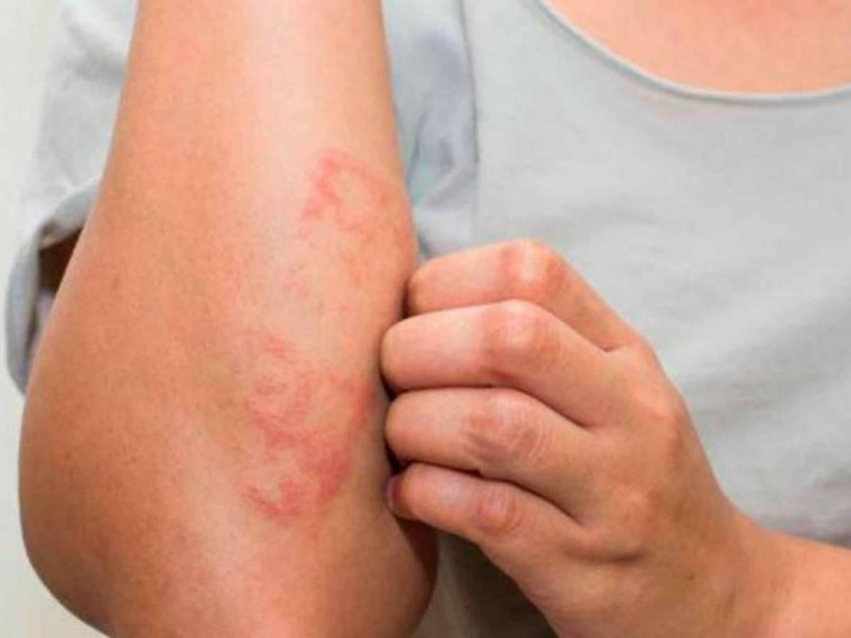 Можно ли принимать солярий при дерматите