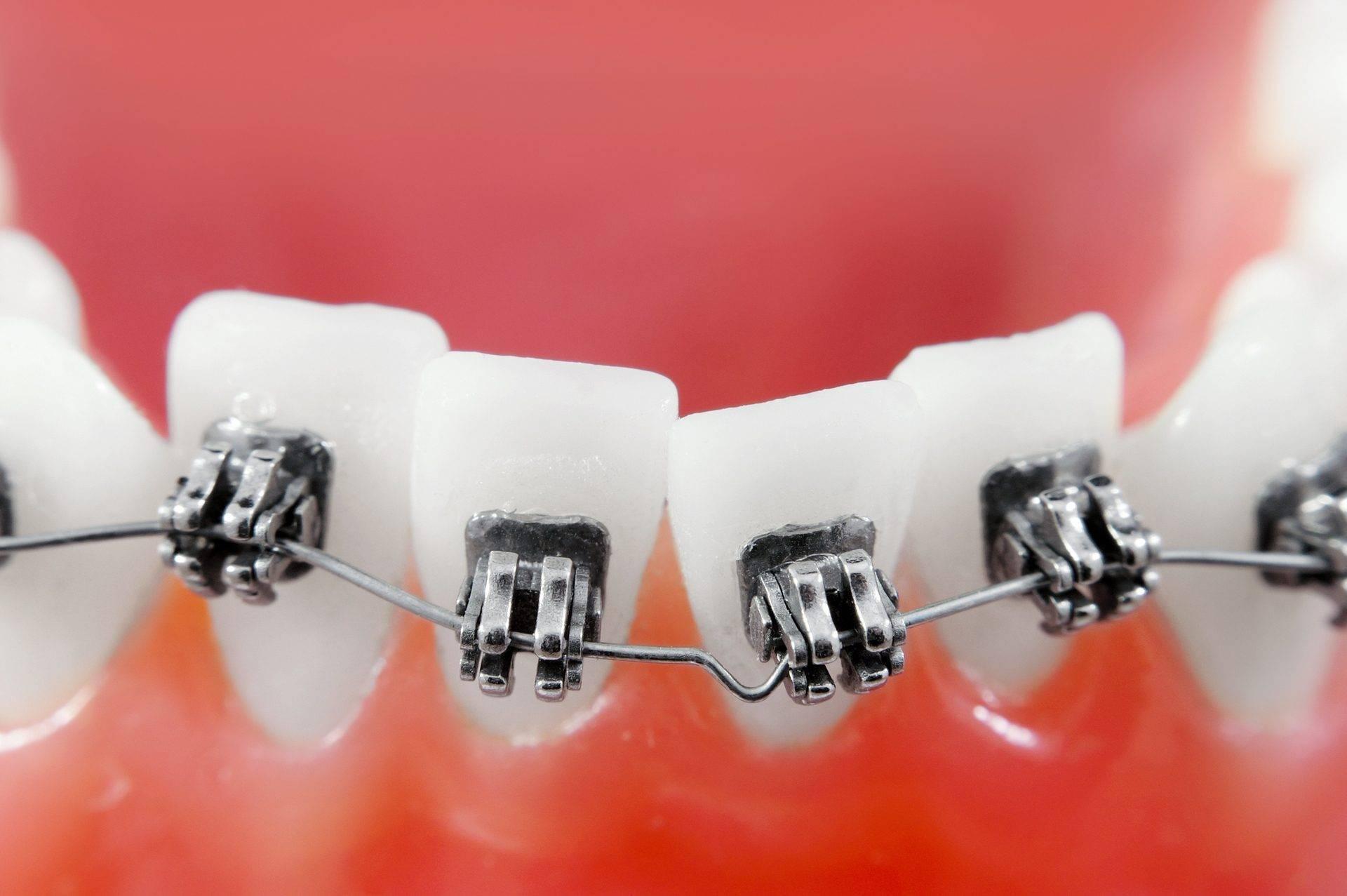 могут ли выпасть зубы от брекетов