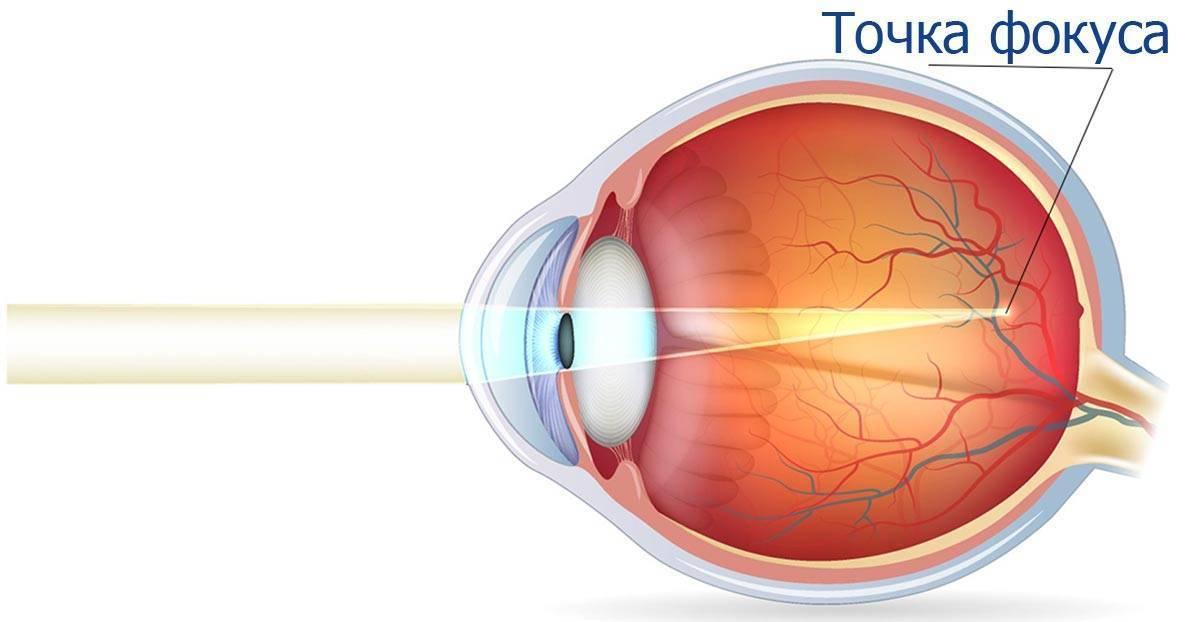 Сложный и простой миопический астигматизм обоих глаз: лечение