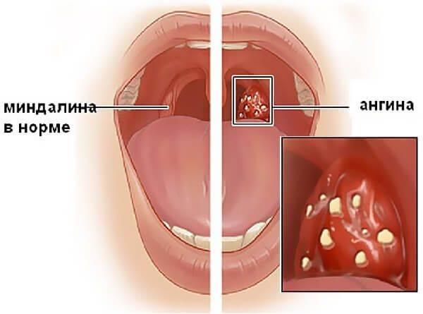 Фолликулярная ангина — фото, симптомы и лечение у детей и взрослых, препараты