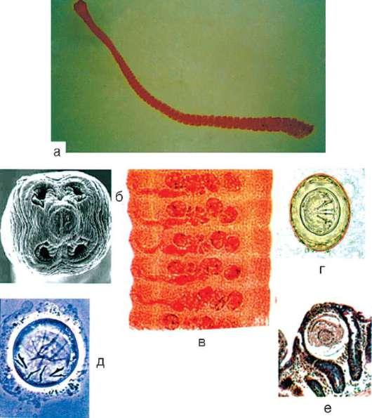 Симптомы и лечение гименолепидоза или карликового цепня