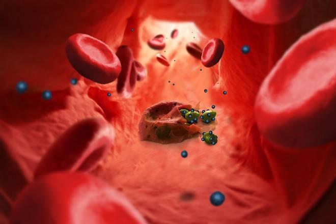 Как развиваются глисты у человека и их лечение