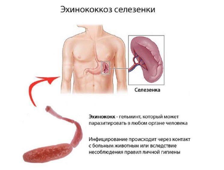 Эхинококкоз. причины, симптомы, современная диагностика и эффективное лечение :: polismed.com
