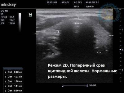 Норма размеров щитовидной железы и ее узлов