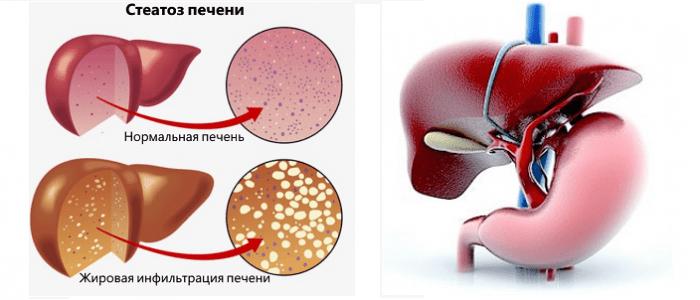 стеатогепатоз печени лечение