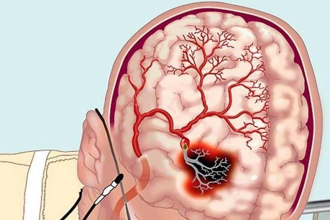 книги по церебральному атеросклерозу