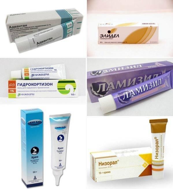 Лечение дерматита мазями и кремами — спросиврача