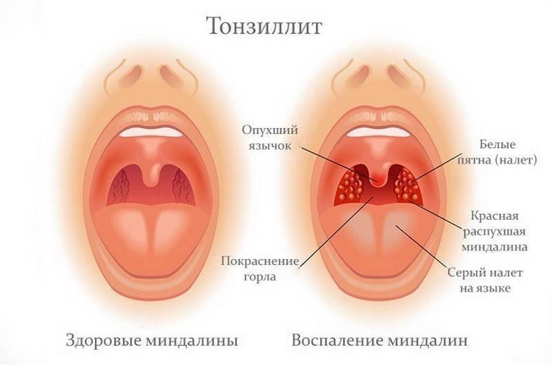 Тонзиллофарингит острый и хронический: симптомы, лечение — симптомы