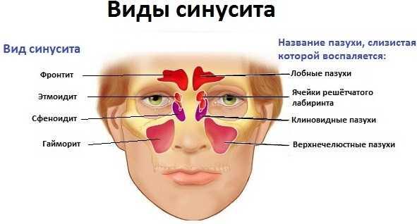Лечение синусита у детей: препараты, народные средства, физиотерапия