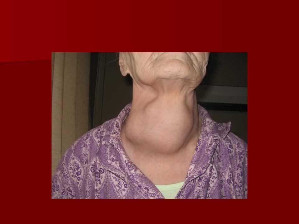 Рак щитовидной железы. симптомы, признаки, причины, диагностика и лечение заболевания.