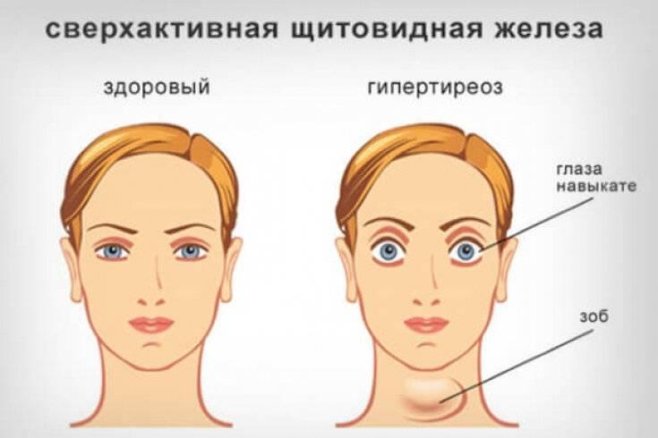 Повышенная функция щитовидной железы