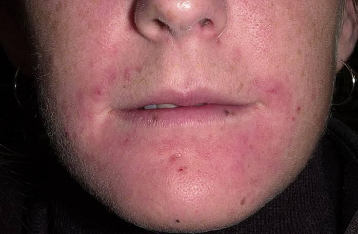 периоральный дерматит причина