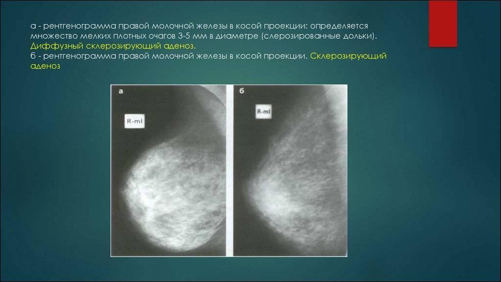 мастопатия с преобладанием фиброзного компонента лечение