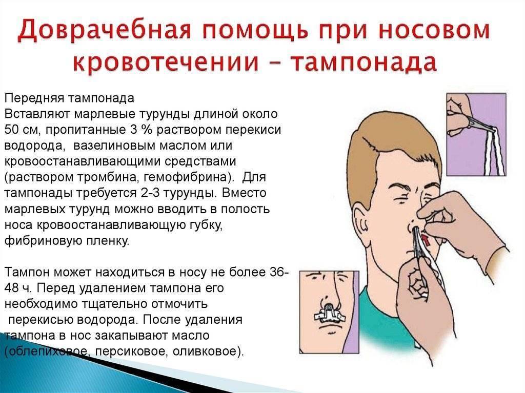 Как правильно и быстро остановить кровотечение из носа