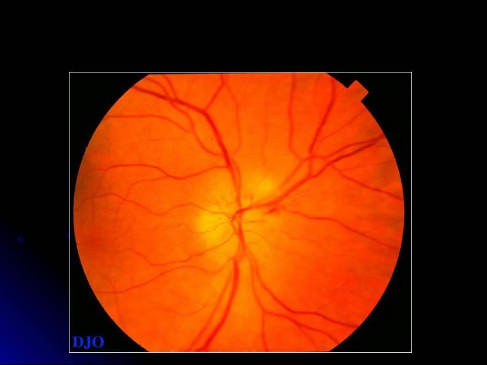 Ишемическая оптическая нейропатия задняя