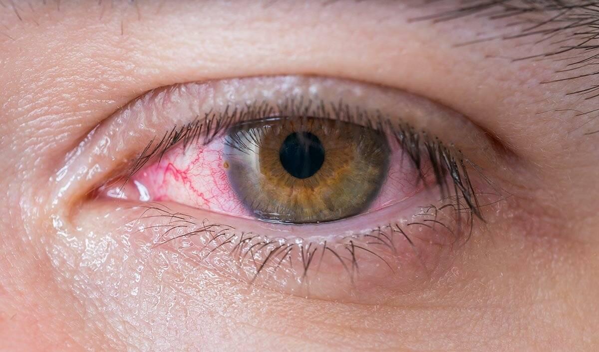 Как справиться своими силами? синдром сухого глаза: симптомы и лечение народными средствами