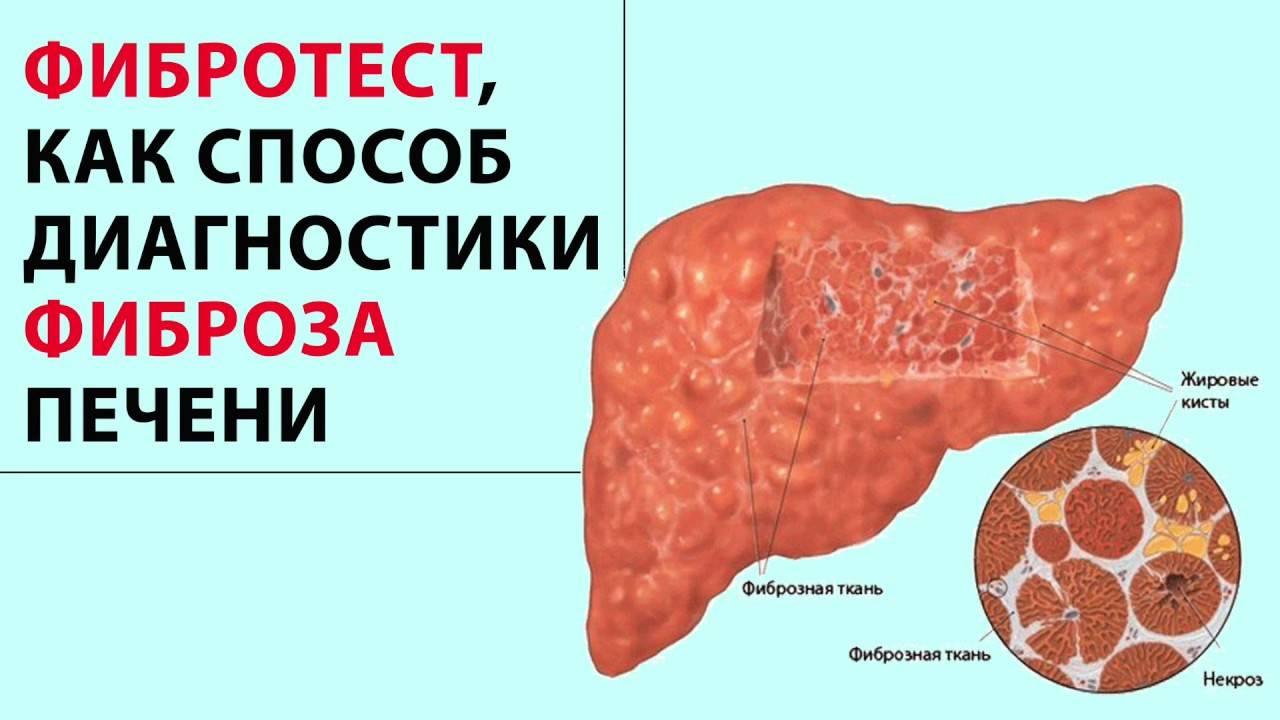 Классификация фиброза печени: определение, его патологические процессы, обратимость и диагностика.