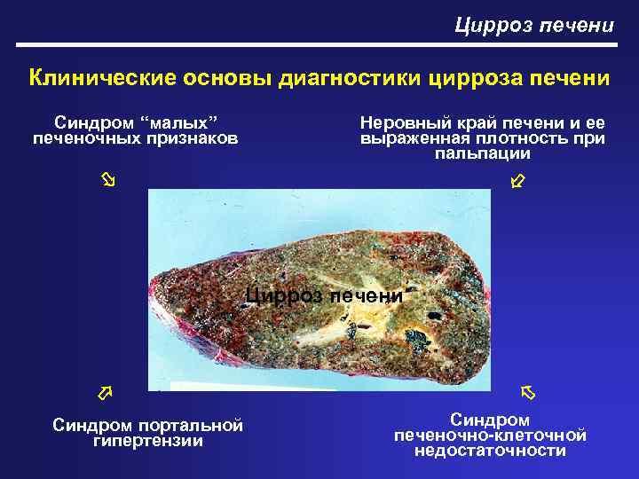 диагностика цирроза печени на ранней стадии