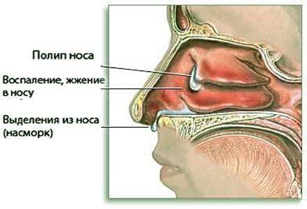 Лечение полипов в носу народными средствамиотзывы