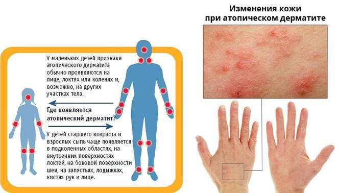 Атопический дерматит: причины и проявления