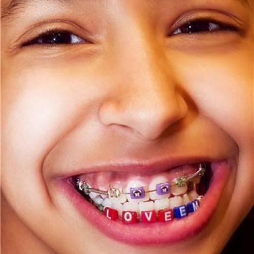 Установка брекетов детям: больно ли ставить подростку в 12 и 14 лет, детские системы можно ставить на молочные маленькие зубы