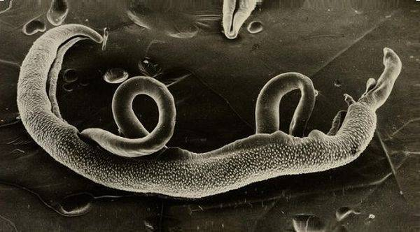 Шистосомоз: причины, симптомы, виды, диагностика и лечение