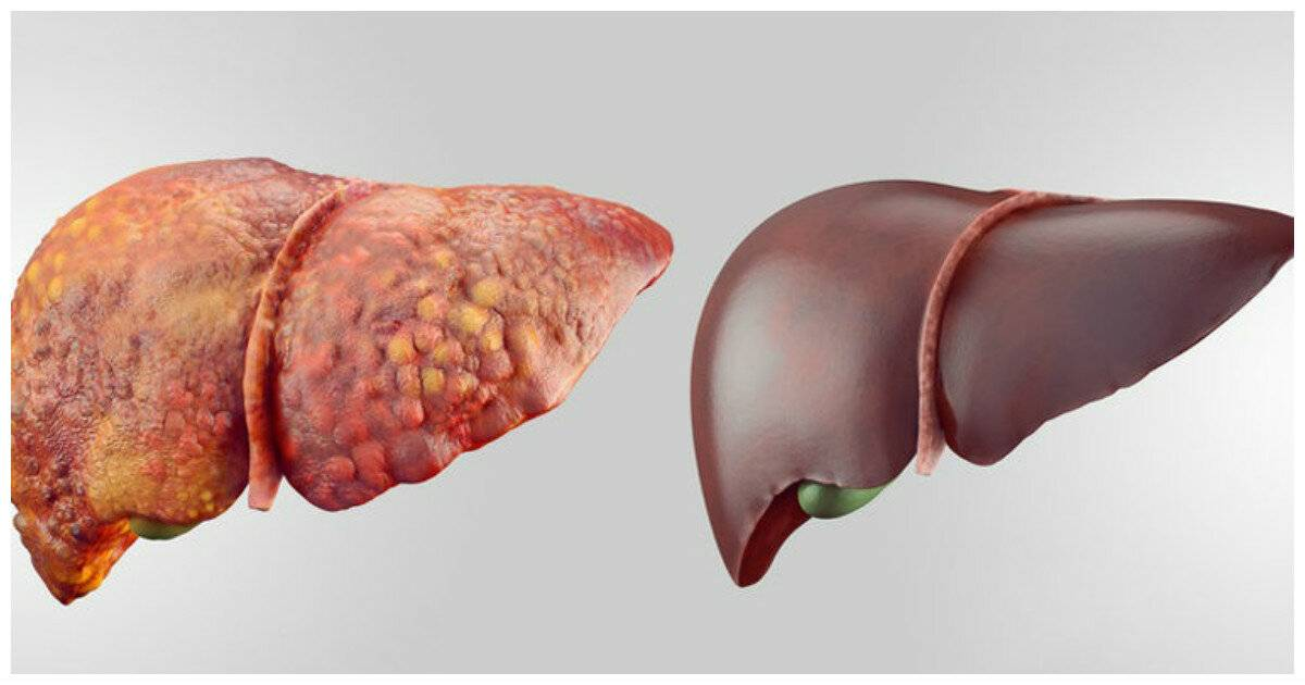 Реактивный гепатит : причины заболевания, основные симптомы, лечение и профилактика