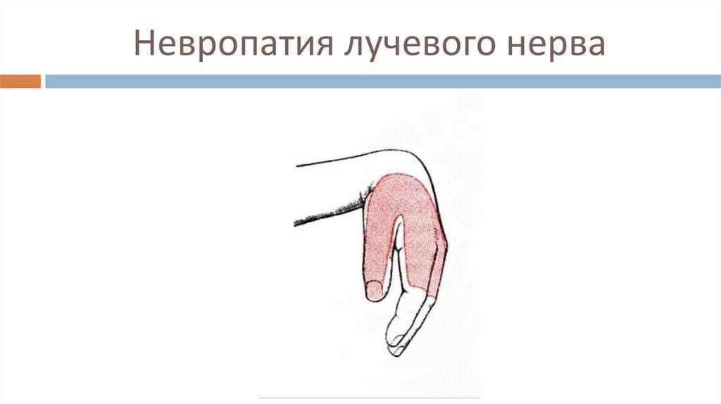 компрессионно ишемическая невропатия лучевого нерва