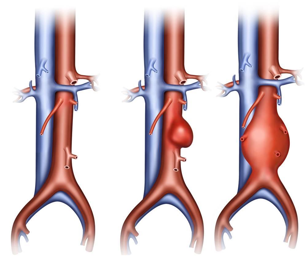 атеросклероз аорты брюшного отдела