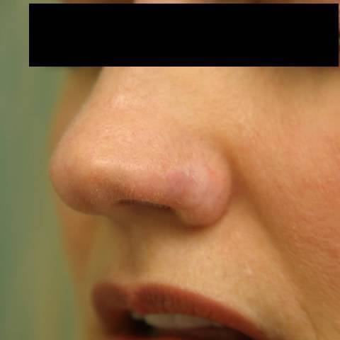 Базалиома носа: в чём опасность?