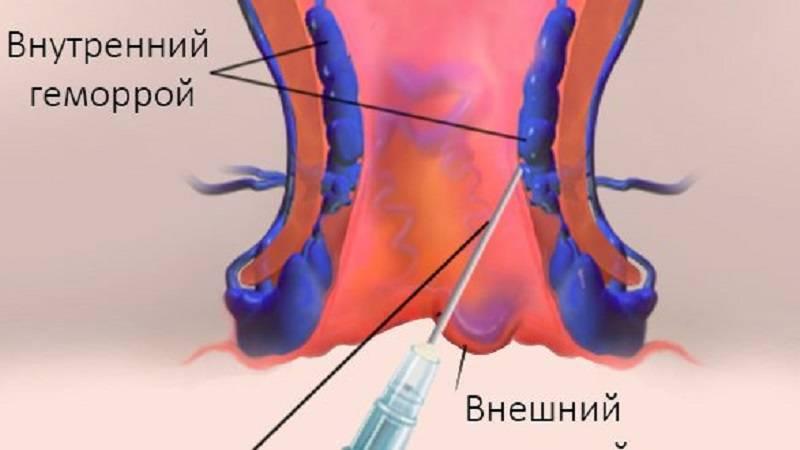Как проводят склеротерапию при наличии геморроидального узла